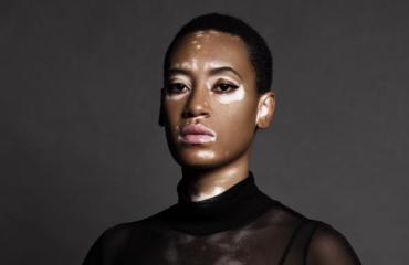 Модель с витилиго стала лицом рекламной кампании CoverGirl