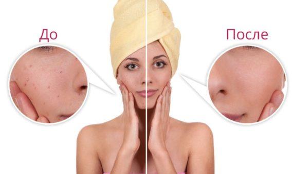 Почему осенью стоит попробовать детокс-уход с AHA-кислотами: личный опыт beauty-редактора