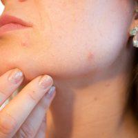 Как избавиться от прыщей: топ-3 совета дерматолога